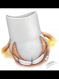 Remodelace aortálního kořene spojená s anuloplastikou pomocí prstence