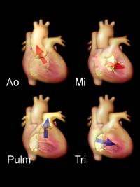 Umístění a směr toku krve na levostranných (aortální a mitrální) a pravostranných (pulmonální a trikuspidální) srdečních chlopních.