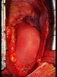 Výsledný stav operace Pears