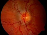 poradna pro diagnostiku a léčbu onemocnění zrakového nervu a zrakové dráhy