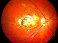 poradna pro diagnostiku a léčbu zánětlivých chorob oka