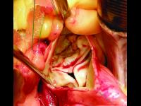 Kalcifikovaná stenóza aortální chlopně