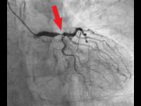 Významné aterosklerotické zúžení kmene levé věnčité tepny