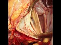 Nedomykavá dvoucípá aortální chlopeň