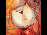 Bioprotéza Crown PRT LivaNova implantovaná do aortálního ústí (listy chlopně      zkonstruovány z hovězího osrdečníku)